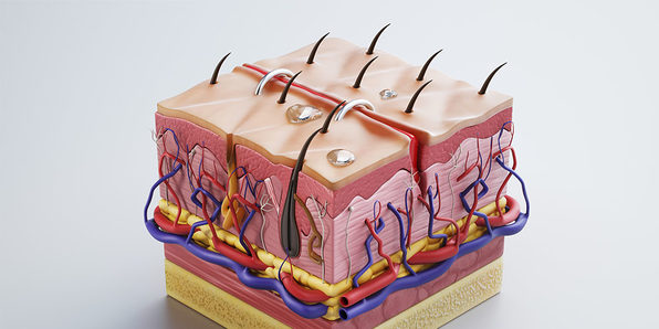 Integumentary System, Part 3: Diseases of the Skin - Product Image